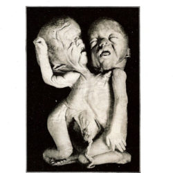SUDDEN INFANT / GREY WOLVES / MACRONYMPHA – Interzone CD