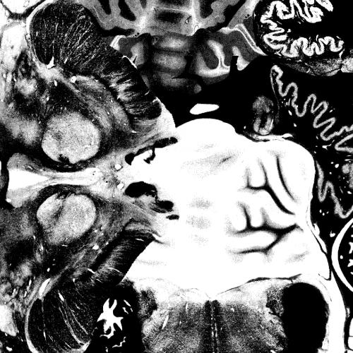 """REGOSPHERE / VOMIT ARSONIST, THE 7"""""""