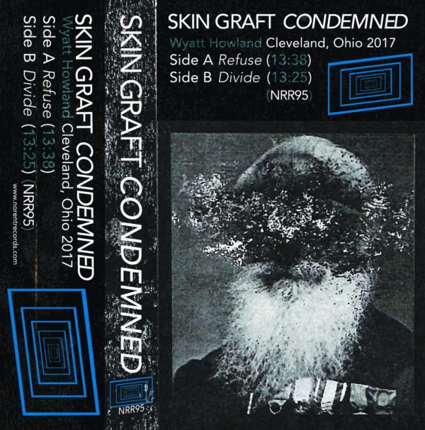 SKIN GRAFT – Condemned CS