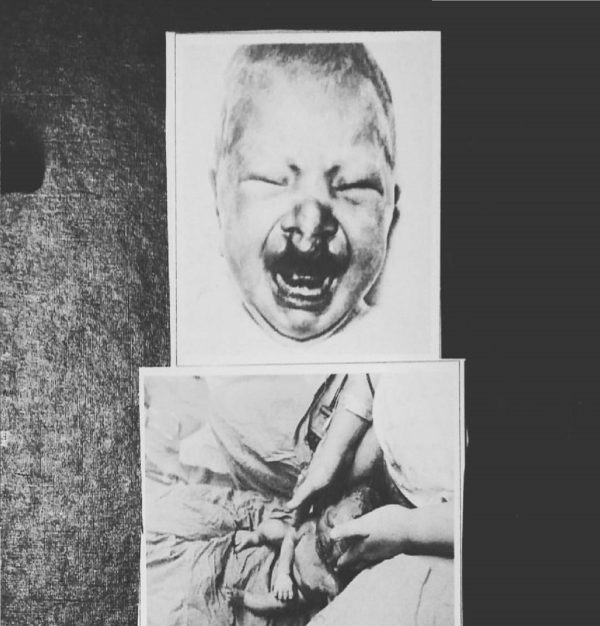 PAIN APPENDIX / ARMENIA – Impure Cruelty CS